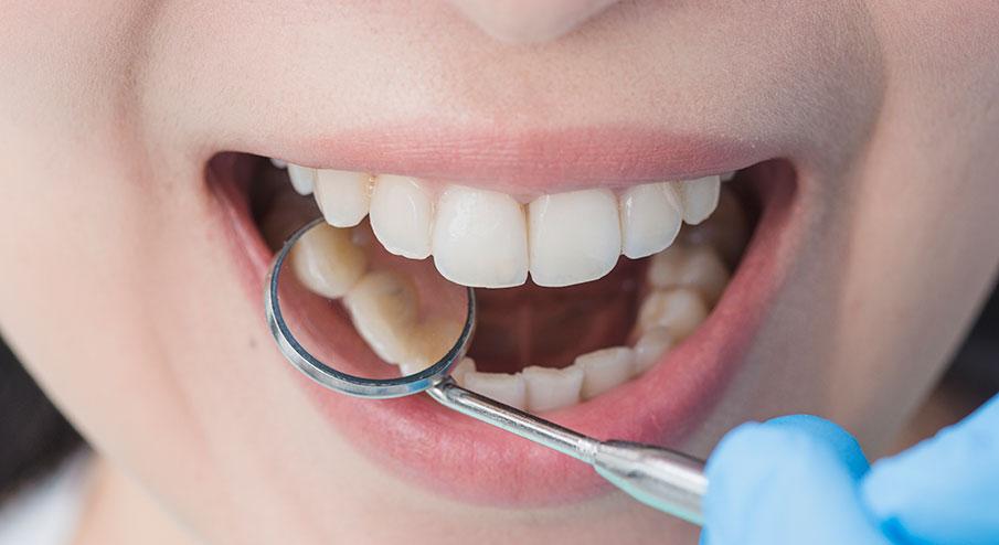 3 fördelar med privat tandvård